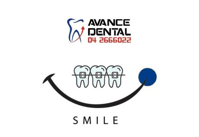 Avance Dental