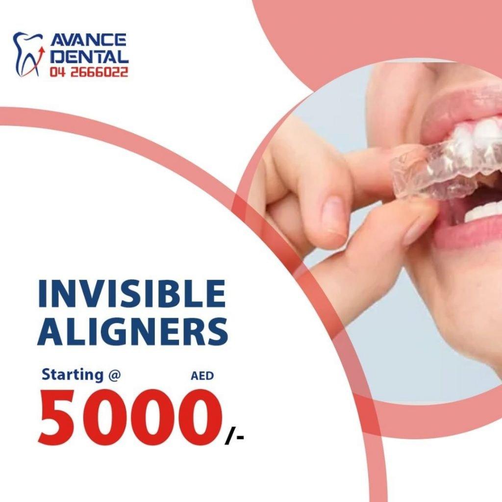 Avance Dental Aligners